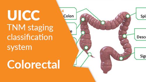 The Uicc Tnm Classification System Colorectal Ecancer