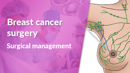 Surgical management in Breast Cancer