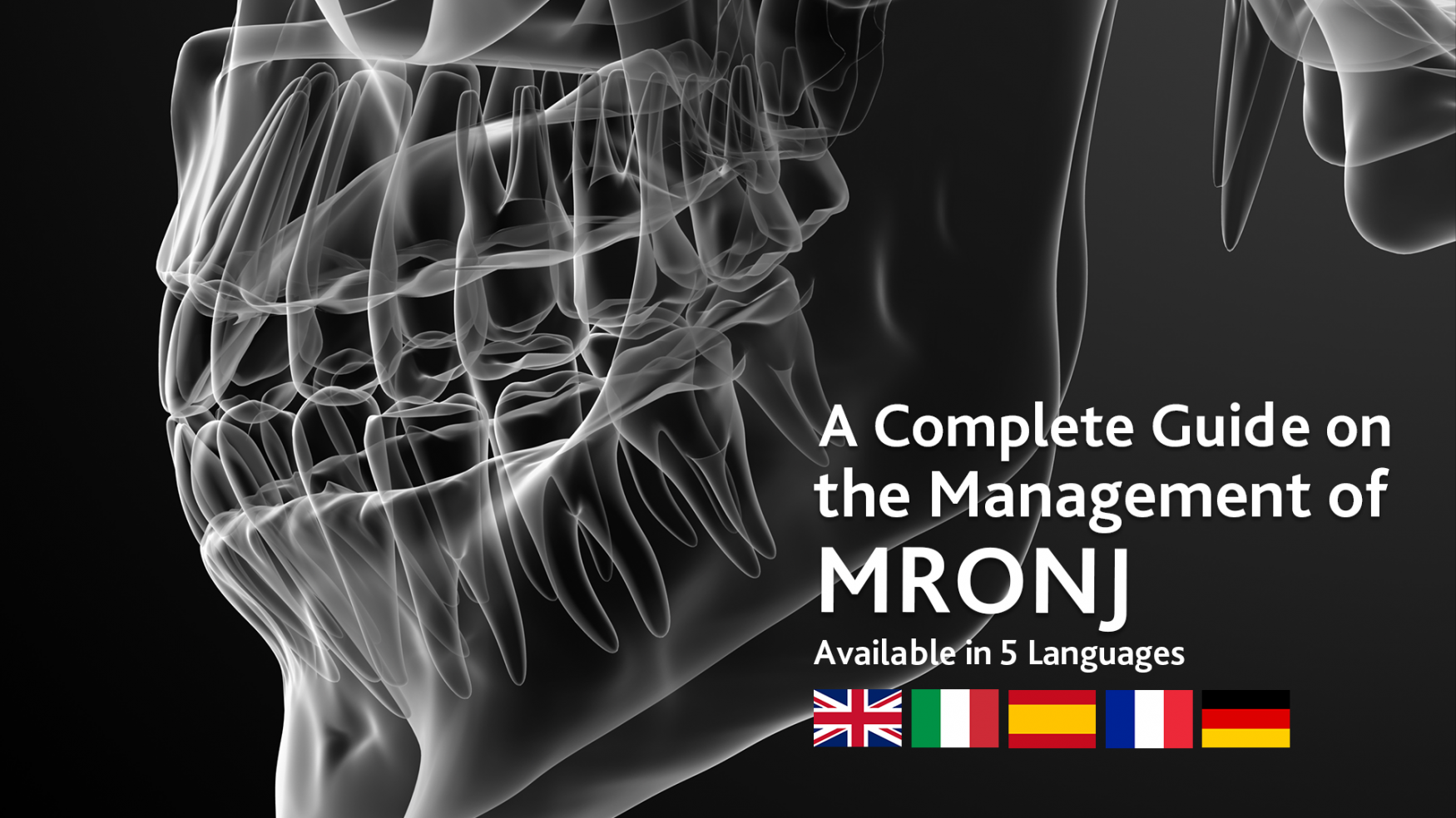 A Complete Guide on the Management of MRONJ (Medication-Related Osteonecrosis of the Jaw) - Available in English, French, Italian, German and Spanish