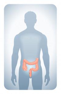 biopsia de próstata de precisión