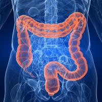 Asco 2017 Healthy Lifestyle After Colon Cancer Diagnosis Helps Patients Live Longer Ecancer