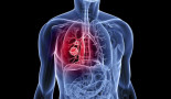 Leukeamia drugs hold promise for treatment-resistant lung cancer
