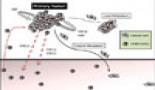 241-tumor-infiltrating-granulocytic-cells-promote-cancer-cell-dissemination
