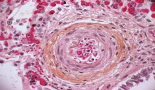 649-cancer-associated-thrombotic-microangiopathy