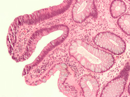 Antibiotics Exposure Linked To Increased Colon Cancer Risk Ecancer