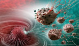 Nanoparticles as weapons against cancer