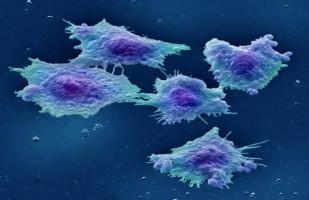 tasa de supervivencia promedio para el cáncer de próstata
