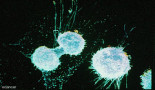 Ovarian cancer cells adapt to their surroundings to aid tumour growth