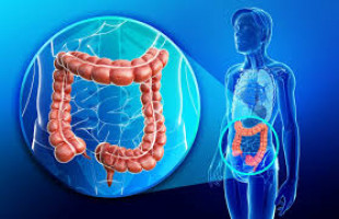 Colorectal Cancer Risk Remains Despite Modern Treatment For Ulcerative Colitis Ecancer