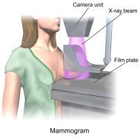 Tomosynthesis with synthetic mammography improves breast cancer detection