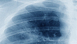 New sensors could offer early detection of lung tumours
