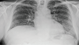 841-fatal-interstitial-lung-disease-caused-by-panitumumab-containing-chemotherapy-regimen