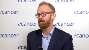 Modern melanoma treatment in the UK ( Dr Joseph Sacco - University of Liverpool, Liverpool, UK )