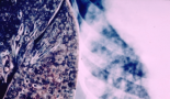 FDA approves brigatinib for ALK-positive metastatic NSCLC