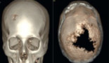 969-scalp-and-skull-bone-metastasis-in-cervical-carcinoma-a-rare-entity