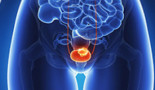 Bladder cancer - When to use chemotherapy