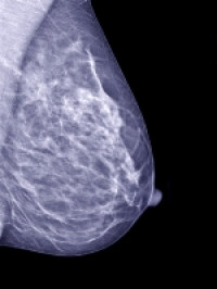 Mammography Detected Breast Cancer In 40 49 Year Olds Has Better