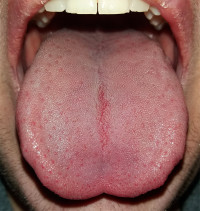 hpv cancer of the tongue)