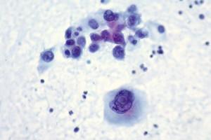 Interleukin-12 electroporation may sensitise 'cold' melanomas to immunotherapies
